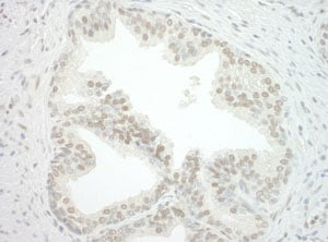 Immunohistochemistry (Formalin/PFA-fixed paraffin-embedded sections) - Anti-cbx7 antibody (ab123492)