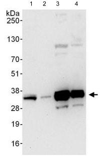 Western blot - Anti-C1orf77/FOP antibody (ab123603)