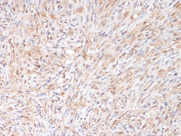 Immunohistochemistry (Formalin/PFA-fixed paraffin-embedded sections) - Anti-NTN3 antibody (ab123726)