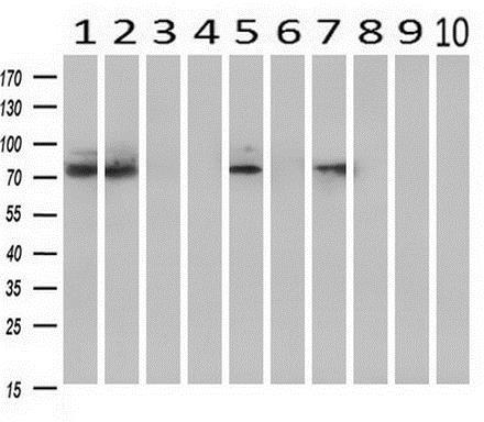 Western blot - Anti-HIF1 beta antibody [OTI1A1] (ab123853)