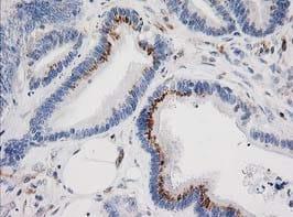 Immunohistochemistry (Formalin/PFA-fixed paraffin-embedded sections) - Anti-IRF6 antibody [OTI2A12] (ab123880)