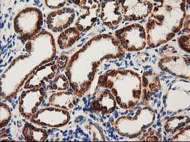 Immunohistochemistry (Formalin/PFA-fixed paraffin-embedded sections) - Anti-MMAB antibody [OTI2G5] (ab123916)