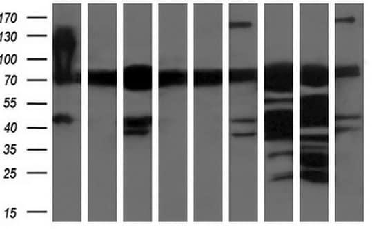Western blot - Anti-XPNPEP1 antibody [OTI1E3] (ab123929)