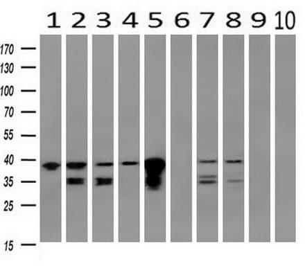 Western blot - Anti-UBXN2B antibody [OTI3H8] (ab124032)