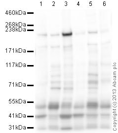 Western blot - Anti-heavy chain Myosin/MYH3 antibody (ab124205)