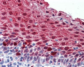Immunohistochemistry (Formalin/PFA-fixed paraffin-embedded sections) - Anti-MARK4 antibody (ab124267)