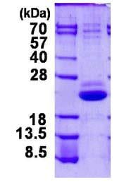 SDS-PAGE - Recombinant Human VPS25 protein (ab124321)