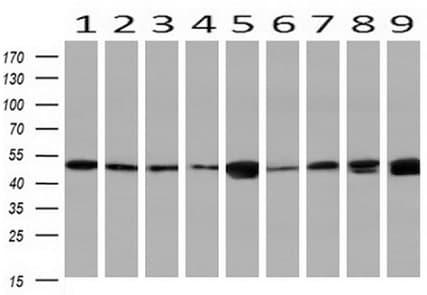 Western blot - Anti-NDP52 antibody [OTI4H5] (ab124372)