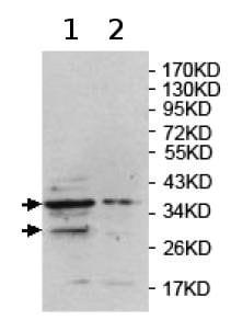 Western blot - Anti-PH2 antibody (ab124405)