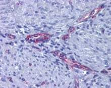 Immunohistochemistry (Formalin/PFA-fixed paraffin-embedded sections) - Anti-Prostaglandin E Receptor EP2/PTGER2 antibody (ab124419)