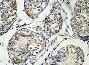 Immunohistochemistry (Formalin/PFA-fixed paraffin-embedded sections) - Anti-EID3 antibody (ab124447)