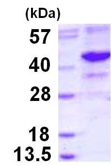 SDS-PAGE - Recombinant Human NEIL2 protein (ab124545)