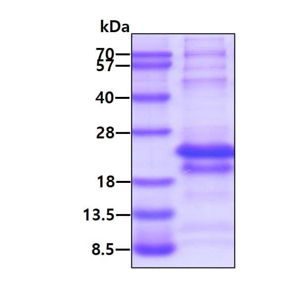 SDS-PAGE - Recombinant Human MAGEA5 protein (ab124572)
