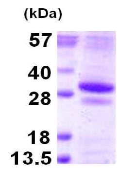 SDS-PAGE - Recombinant Human GSTO2 protein (ab124576)
