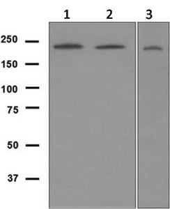 Western blot - Anti-Werner's syndrome helicase WRN antibody [EPR6392] (ab124673)