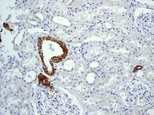 Immunohistochemistry (Formalin/PFA-fixed paraffin-embedded sections) - Anti-Myosin, smooth muscle heavy chain 1 and 2 antibody [EPR5335] (ab124679)