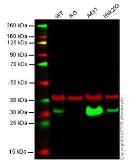 Western blot - Anti-Carbonic anhydrase 2/CA2 antibody [EPR5195] (ab124687)