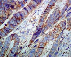 Immunohistochemistry (Formalin/PFA-fixed paraffin-embedded sections) - Anti-NDRG1 antibody [EPR5593] (ab124689)