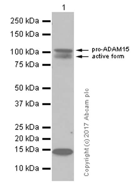 Western blot - Anti-ADAM15 antibody [EPR5619] (ab124698)