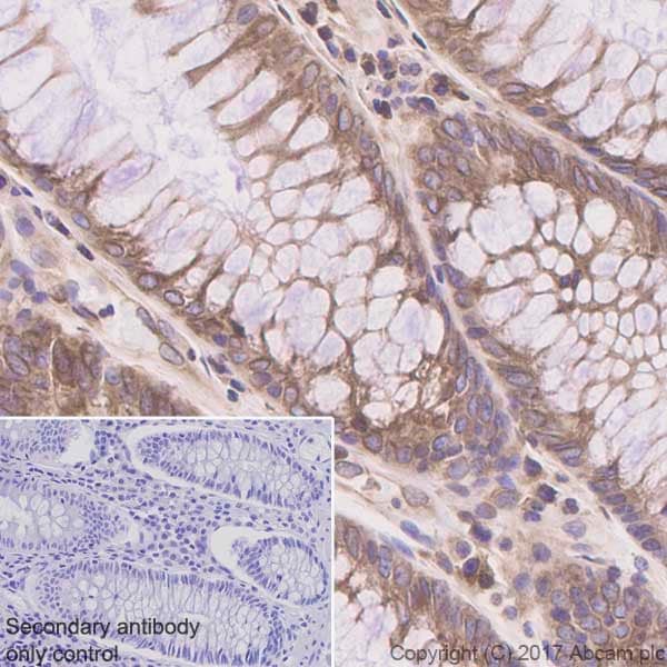 Immunohistochemistry (Formalin/PFA-fixed paraffin-embedded sections) - Anti-ADAM15 antibody [EPR5619] (ab124698)