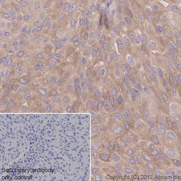 Immunohistochemistry (Formalin/PFA-fixed paraffin-embedded sections) - Anti-Retinoic Acid Receptor beta antibody [EPR2017] (ab124701)