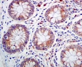 Immunohistochemistry (Formalin/PFA-fixed paraffin-embedded sections) - Anti-BMP4 antibody [EPR6211] (ab124715)