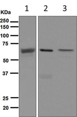Western blot - Anti-SENP2 antibody [EPR4356(2)] (ab124724)