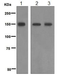 Western blot - Anti-Phospholipase C beta 3/PLCB3 antibody [EPR5951] (ab124735)