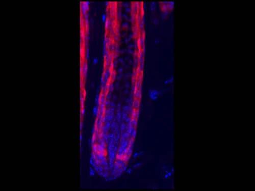 Immunohistochemistry (Formalin/PFA-fixed paraffin-embedded sections) - Anti-RFP antibody (ab124754)