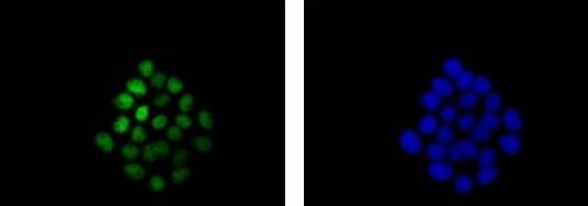 Immunocytochemistry/ Immunofluorescence - Anti-p63 antibody [EPR5701] (ab124762)