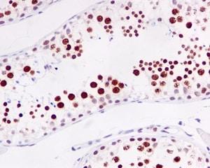 Immunohistochemistry (Formalin/PFA-fixed paraffin-embedded sections) - Anti-RAP80 antibody [EPR5315] (ab124763)
