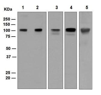 Western blot - Anti-SUN1 antibody [EPR6554] (ab124770)