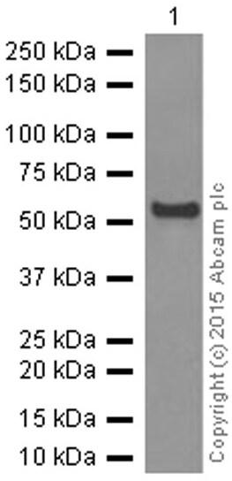 Western blot - Anti-Aromatase antibody [EPR4534(2)] (ab124776)