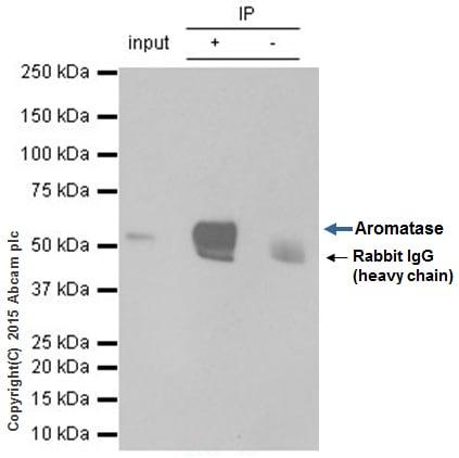 Immunoprecipitation - Anti-Aromatase antibody [EPR4534(2)] (ab124776)