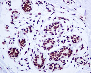 Immunohistochemistry (Formalin/PFA-fixed paraffin-embedded sections) - Anti-Histone H2A.Z antibody [EPR6172] (ab124793)