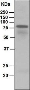 Western blot - Anti-IgD antibody [EPR6146] (ab124795)