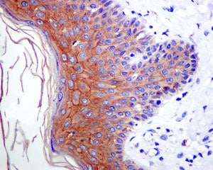 Immunohistochemistry (Formalin/PFA-fixed paraffin-embedded sections) - Anti-Desmoglein 1/DSG1 antibody [EPR6766(B)] (ab124798)