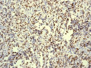 Immunohistochemistry (Formalin/PFA-fixed paraffin-embedded sections) - Anti-Myogenin antibody [EPR4789] (ab124800)