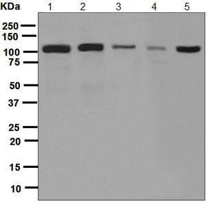 Western blot - Anti-Cadherin 9 antibody [EPR5113] (ab124803)