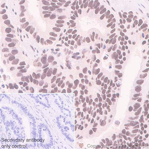 Immunohistochemistry (Formalin/PFA-fixed paraffin-embedded sections) - Anti-SP1 antibody [EPR6662(B)] (ab124804)
