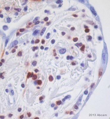 Immunohistochemistry (Formalin/PFA-fixed paraffin-embedded sections) - Anti-S100A4 antibody [EPR2761(2)] (ab124805)
