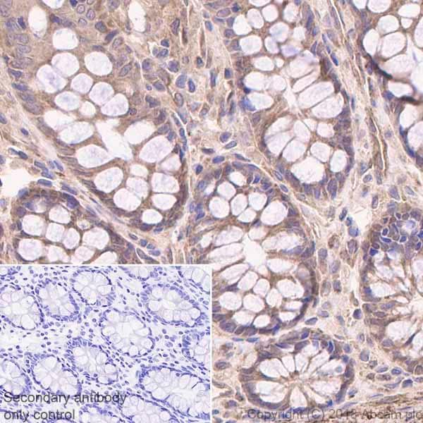 Immunohistochemistry (Formalin/PFA-fixed paraffin-embedded sections) - Anti-MGEA5/OGA antibody [EPR7154(B)] (ab124807)