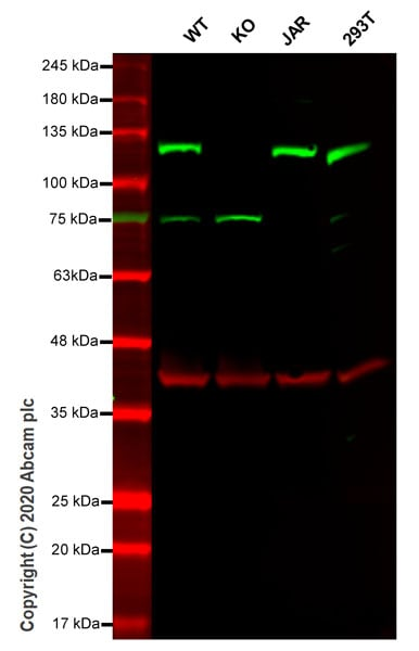 Western blot - Anti-MGEA5/OGA antibody [EPR7154(B)] (ab124807)