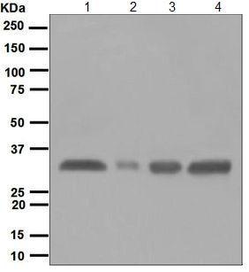 Western blot - Anti-HLA-DR antibody [EPR3691(2)] (ab124809)
