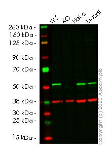 Western blot - Anti-Glutathione Synthetase antibody [EPR6562] (ab124811)