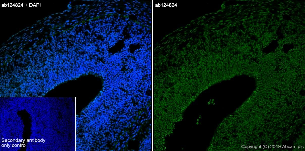 Immunohistochemistry (Frozen sections) - Anti-CXCR4 antibody [UMB2] (ab124824)