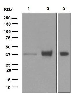 Western blot - Anti-EpCAM antibody [EPR677(2)] (ab124825)
