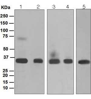 Western blot - Anti-MEOX 2 antibody [EPR5568] (ab124876)