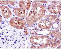 Immunohistochemistry (Formalin/PFA-fixed paraffin-embedded sections) - Anti-EPS8 antibody [EPR6112] (ab124882)