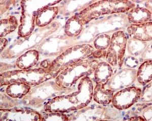 Immunohistochemistry (Formalin/PFA-fixed paraffin-embedded sections) - Anti-SPTBN1 antibody [EPR5869] (ab124888)